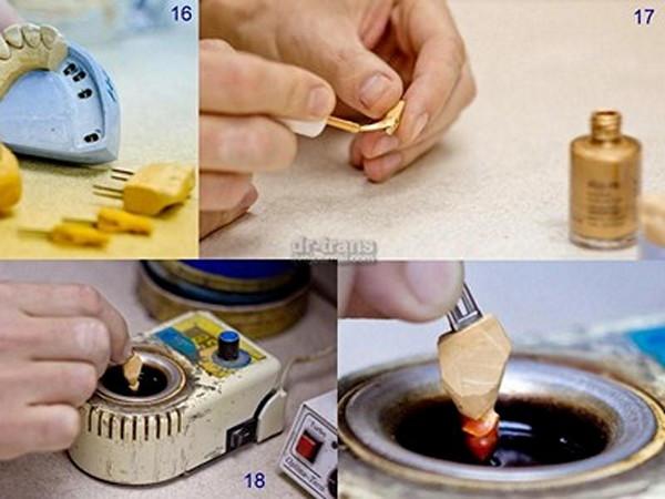 Как делают зубы